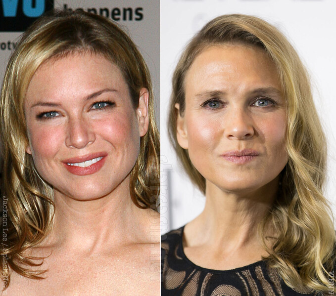 Renee-Zellweger-before-and-after.jpg